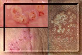 Nasıl yapılır herpes testi genital Genital Herpes